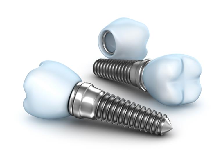 Implante Dentário 4