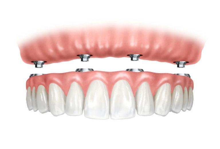 Prótese Dentária 4